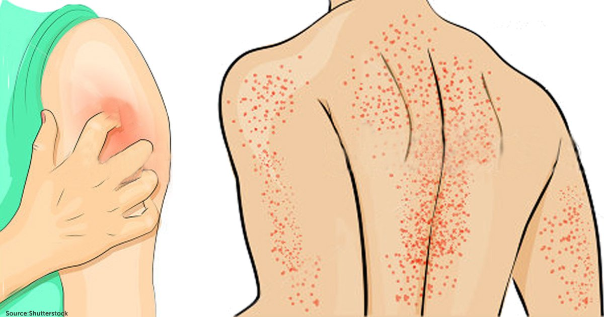 Skin Cancer May Increase Your Risk of OTHER Cancers