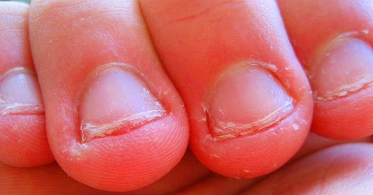 Psychologists Discovered 9 Things Biting Your Nails Says About Your ...