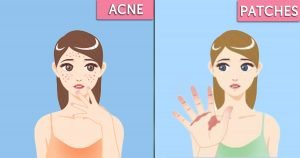 These 8 Skin Issues Can Ruin Your Body