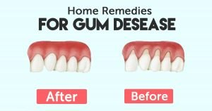 Here Are 10 Extremely Effective Home Remedies for Healing Gums