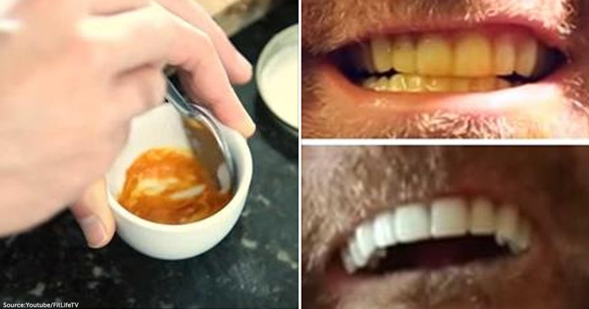 Here S How You Can Whiten Your Teeth Naturally With Only Three