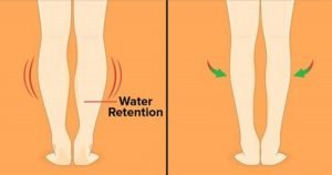 Here Are 12 Simple Remedies To Avoid Water Retention In Your Body