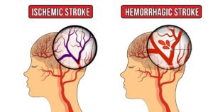 Here Are 7 Symptoms and Types of Strokes in Women